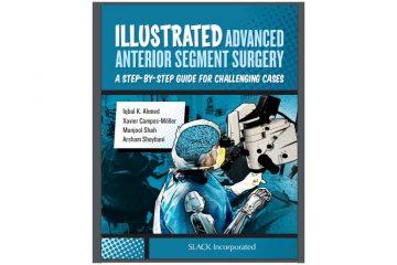 Illustrated Advanced Anterior Segment Surgery 1st Edition PDF