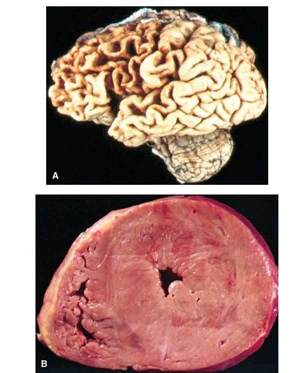Atrophy of the frontal lobe of the brain image